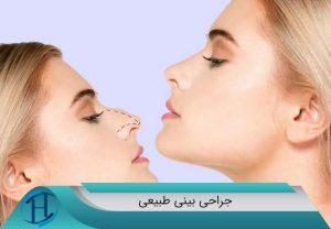 جراح-بینی-طبیعی-دکتر-ایت-الله-رضایی