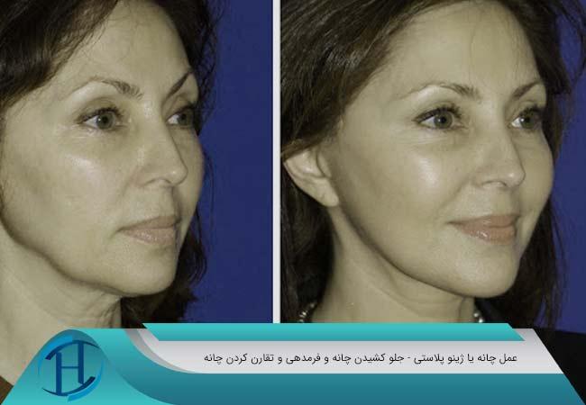 جراحی چانه در مشهد