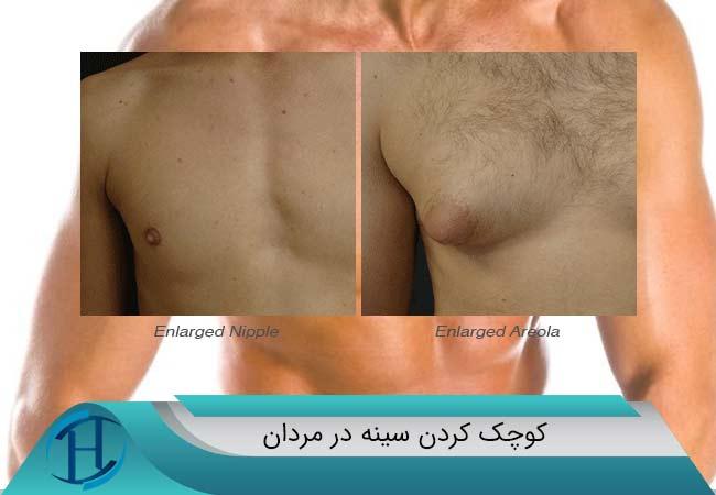 کوچک-کردن-سینه-مردان--فوق-تخصص-جراحی-پلاستیک