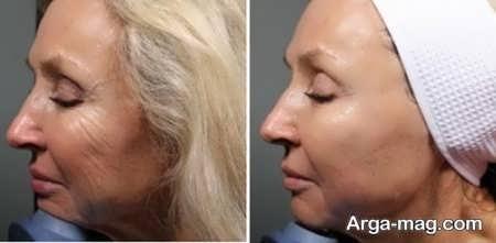 کشیدن پوست صورت با هایفو