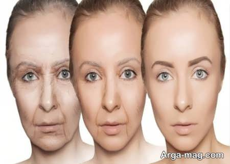 نحوه انجام کشیدن پوست صورت با هایفو