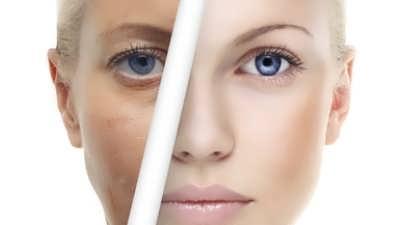 عمل های زیبایی برای صورت