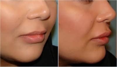 جراحی زیبایی برای صورت