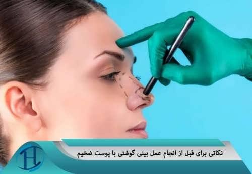 مراقبت های بعد از عمل زیبایی بینی گوشتی