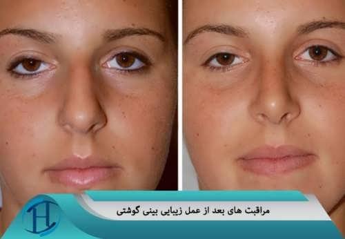 مراقبت های بعد از جراحی بینی گوشتی
