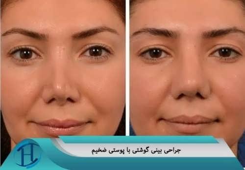 جراحی بینی گوشتی با پوست ضخیم