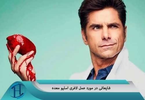 جراحی معده
