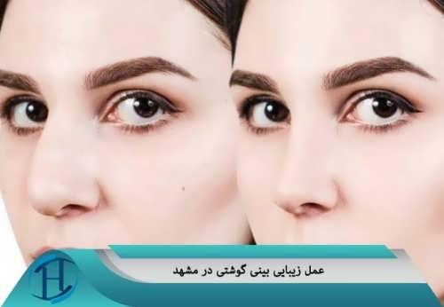 ویژگی های بهترین دکتر عمل زیبایی بینی گوشتی در مشهد