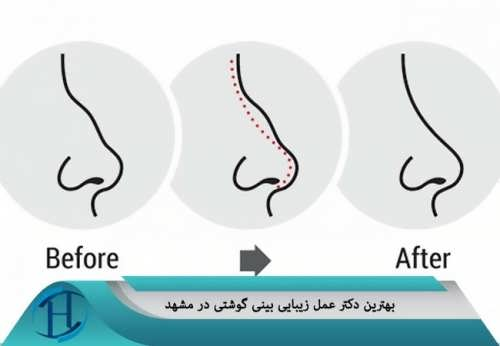 بهترین دکتر عمل زیبایی بینی گوشتی در مشهد