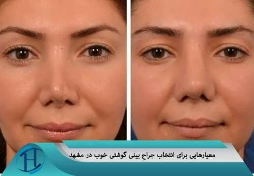 معیارهایی برای انتخاب جراح بینی گوشتی خوب در مشهد