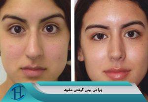 جراحی بینی گوشتی مشهد