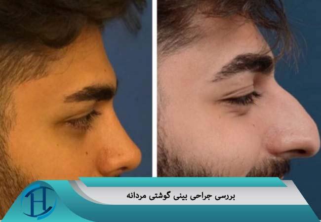 جراحی بینی گوشتی مردانه