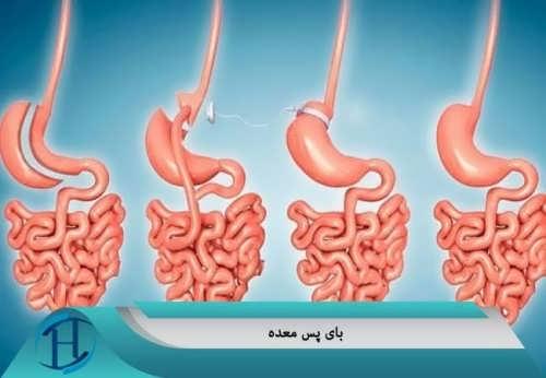 انواع روش های پرطرفدار جراحی لاغری