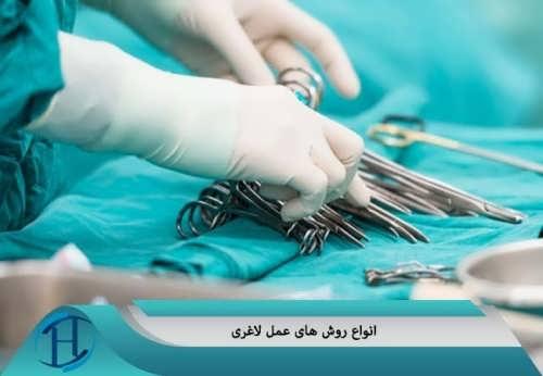 پرطرفدارترین روش های جراحی لاغری