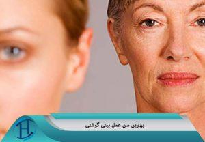بهترین سن عمل بینی