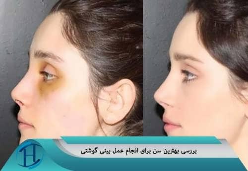 بررسی سن مناسب برای انجام عمل بینی