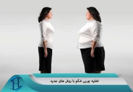تخلیه چربی از شکم با روش های رایج و جدید