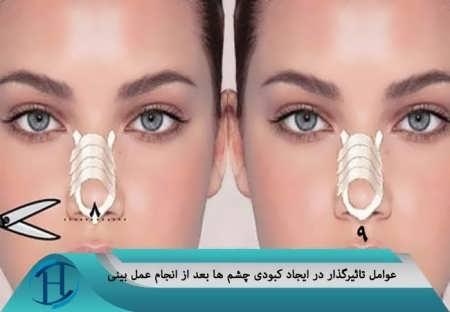 درمان کبودی زیر چشم بعد از عمل بینی