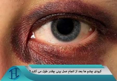درمان خانگی برای رفع کبودی زیر چشم ها