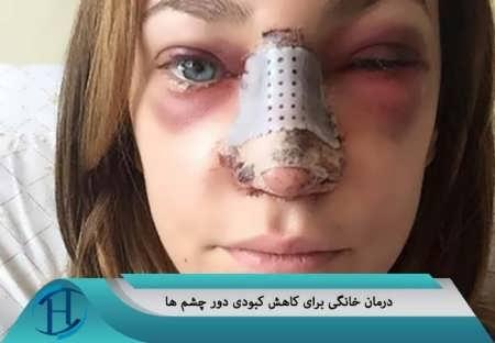 کبودی زیر چشم ها بعد از عمل