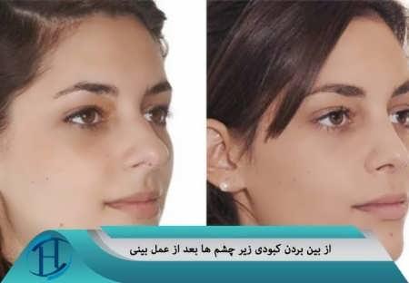 درمان کبودی زیر چشم ها بعد از عمل بینی