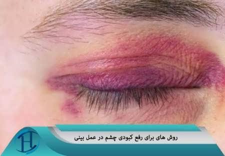 رفع کبودی زیر چشم بعد از جراحی بینی