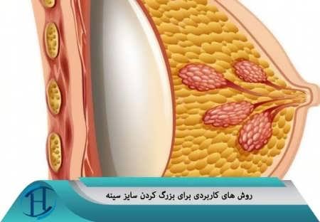 روش های کاربردی برای افزایش سایز سینه ها