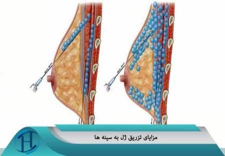 تزریق ژل به سینه