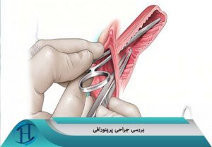 جراحی پرینورافی
