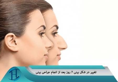 تغییرات در فرم بینی بعد از عمل بینی