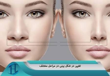 تغییر در ظاهر بینی بعد از عمل