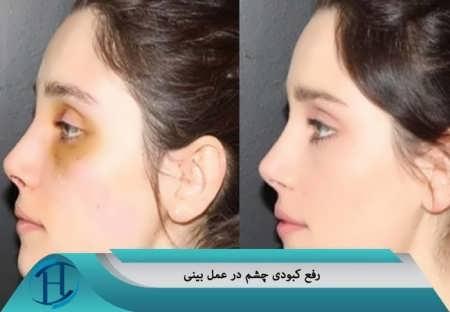 از بین بردن کبودی چشم در عمل بینی