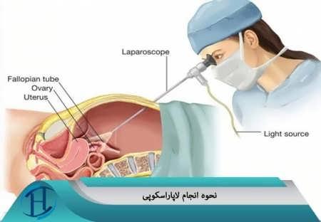 لاپاراسکوپ چیست ؟