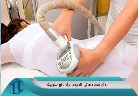 روش های درمانی برای از بین بردن سلولیت