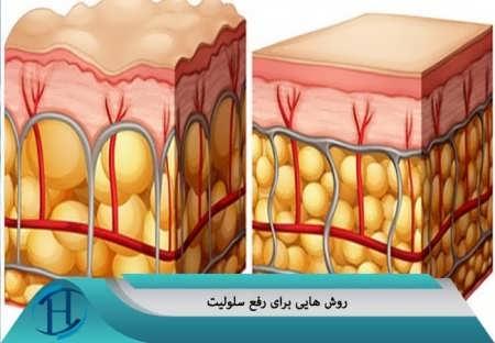روش هایی برای رفع سلولیت