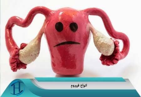 انواع فیبروم