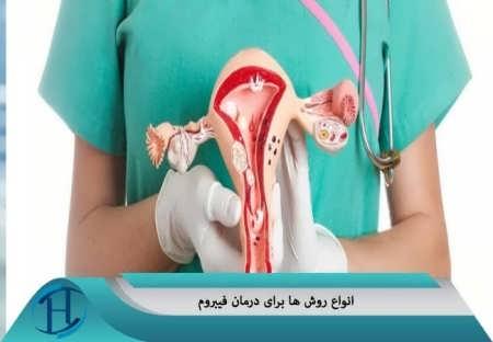 روش هایی برای درمان فیبروم