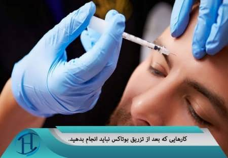تزریق بوتاکس به پوست صورت