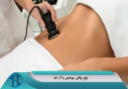 درمان چاقی موضعی با آر اف