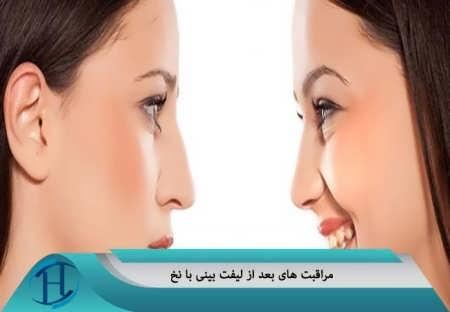 مراقبت های بعد از عمل بینی با نخ