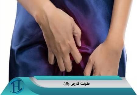 عفونت قارچی واژن