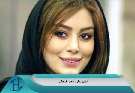 عمل بینی بازیگران ایرانی معروف