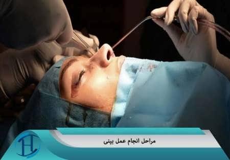 بررسی مراحل عمل بینی