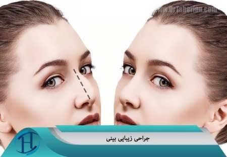 جراحی زیبا بینی یا رینوپلاستی