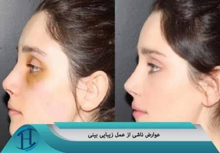 عوارضی عمل بینی