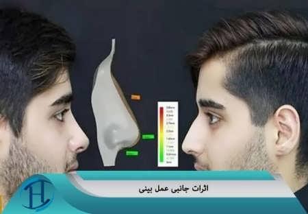 اثرت جانبی ناشی از عمل بینی