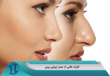 مدیریت عوارض ناشی از جراحی بینی