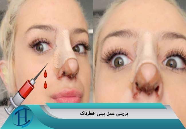 عمل بینی خطرناک