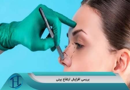 بررسی افزایش ارتفاع بینی