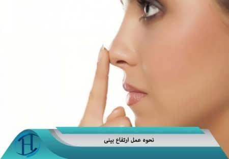 نحوه جراحی بینی برای افزایش ارتفاع بینی